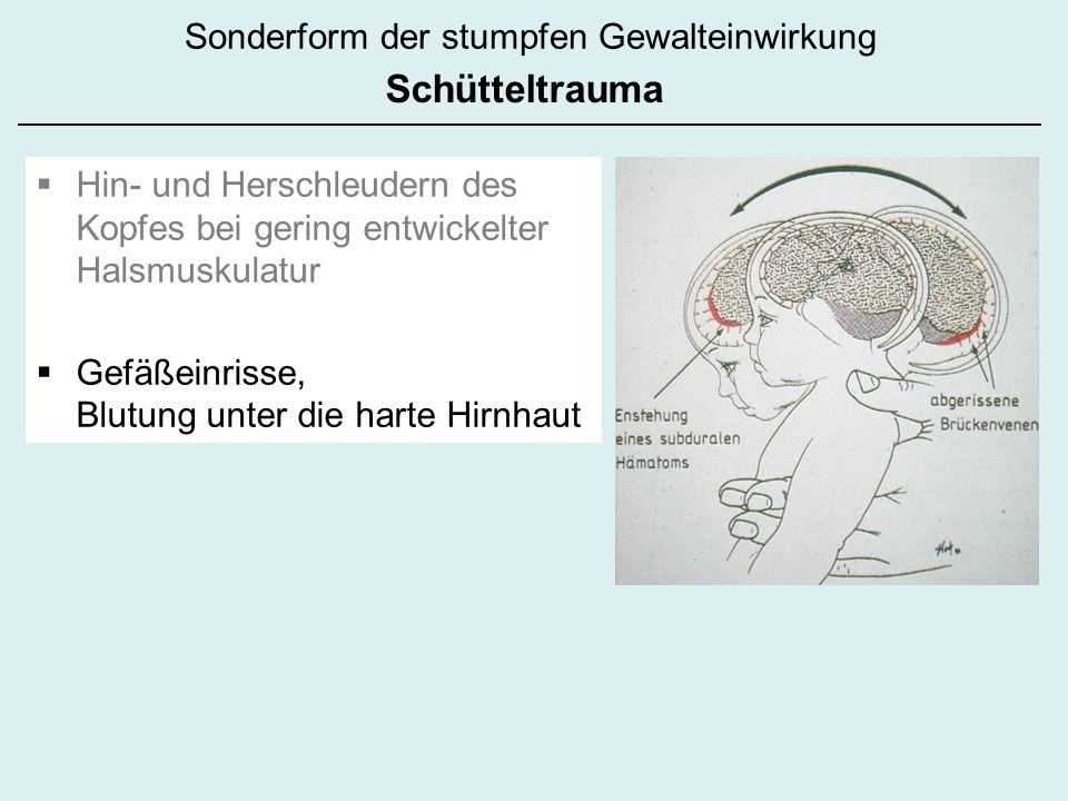 Hin- und Herschleudern des Kopfes bei gering entwickelter Halsmuskulatur Gefäßeinrisse, Blutung unter die harte Hirnhaut Sonderform der stumpfen Gewal