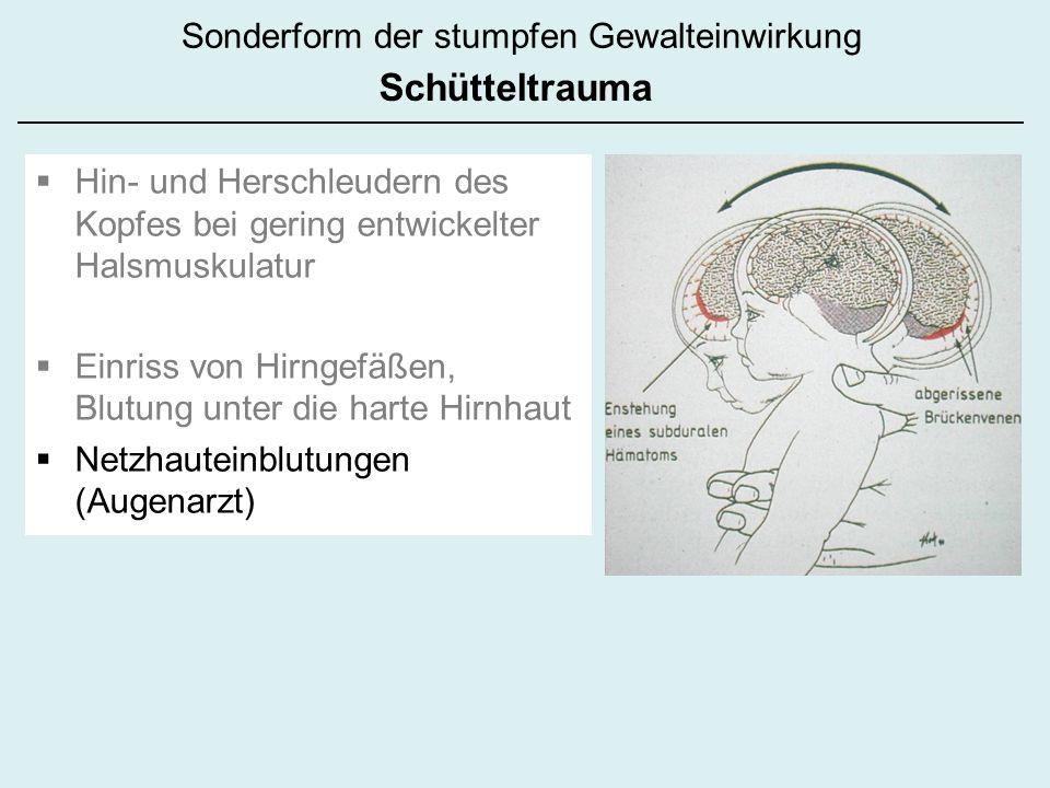 Hin- und Herschleudern des Kopfes bei gering entwickelter Halsmuskulatur Einriss von Hirngefäßen, Blutung unter die harte Hirnhaut Netzhauteinblutungen (Augenarzt) Sonderform der stumpfen Gewalteinwirkung Schütteltrauma