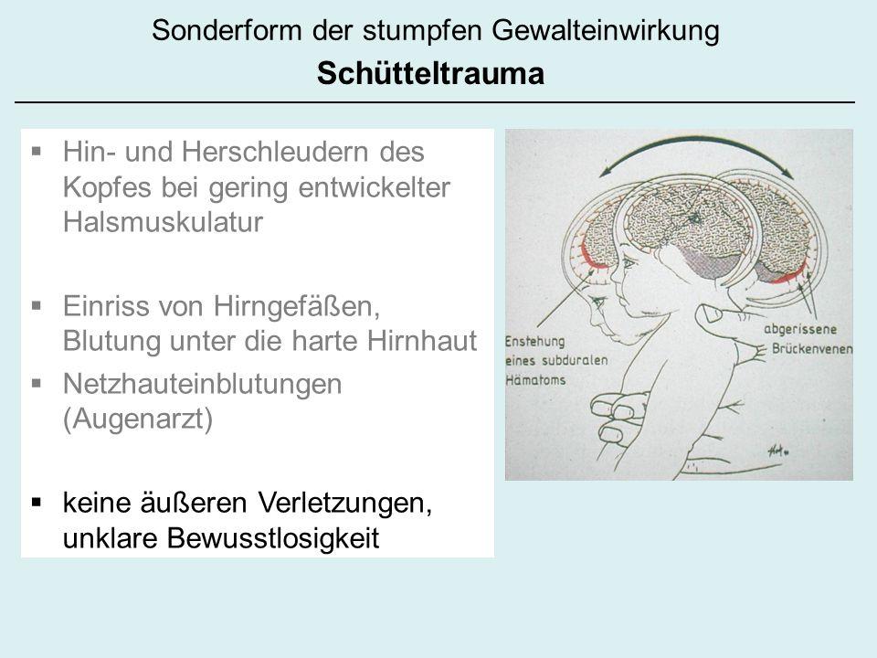 Hin- und Herschleudern des Kopfes bei gering entwickelter Halsmuskulatur Einriss von Hirngefäßen, Blutung unter die harte Hirnhaut Netzhauteinblutungen (Augenarzt) keine äußeren Verletzungen, unklare Bewusstlosigkeit Sonderform der stumpfen Gewalteinwirkung Schütteltrauma