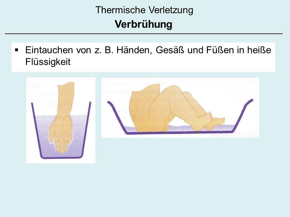 Thermische Verletzung Eintauchen von z. B. Händen, Gesäß und Füßen in heiße Flüssigkeit Verbrühung