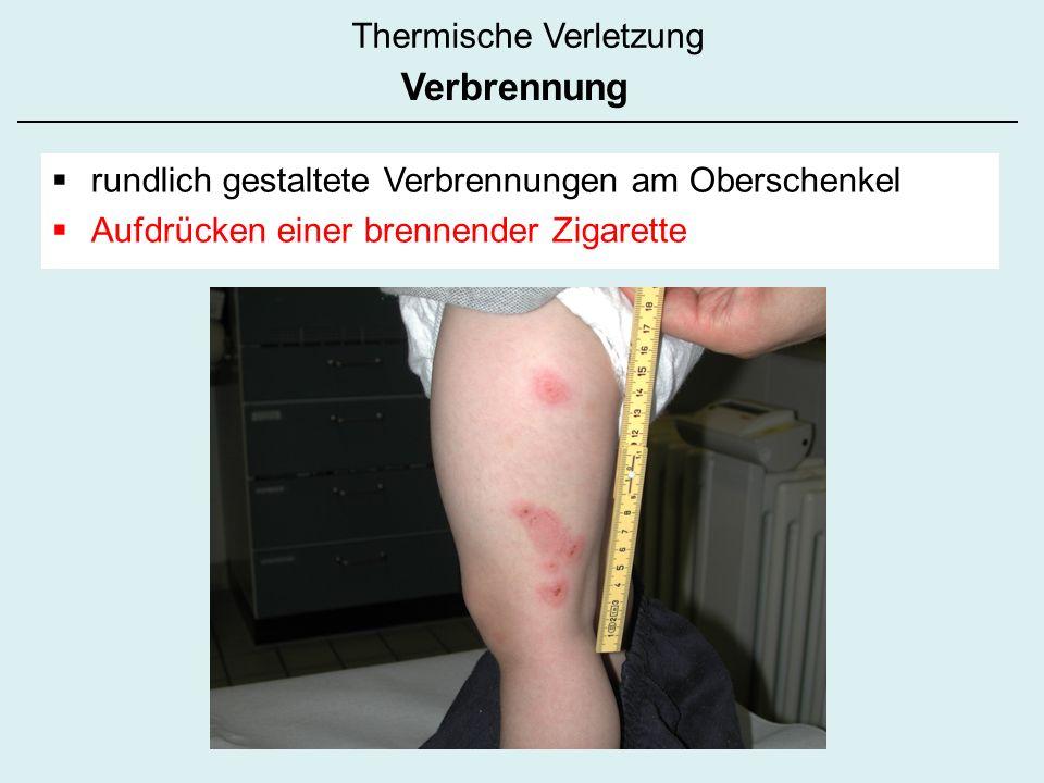 Thermische Verletzung Verbrennung rundlich gestaltete Verbrennungen am Oberschenkel Aufdrücken einer brennender Zigarette