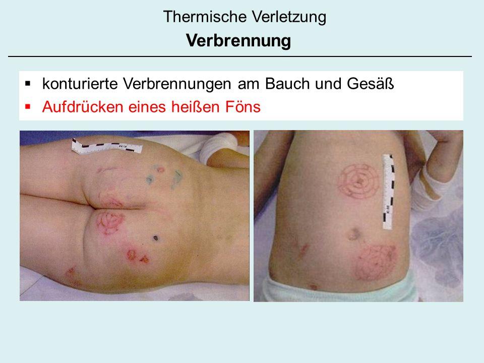 konturierte Verbrennungen am Bauch und Gesäß Aufdrücken eines heißen Föns Thermische Verletzung Verbrennung