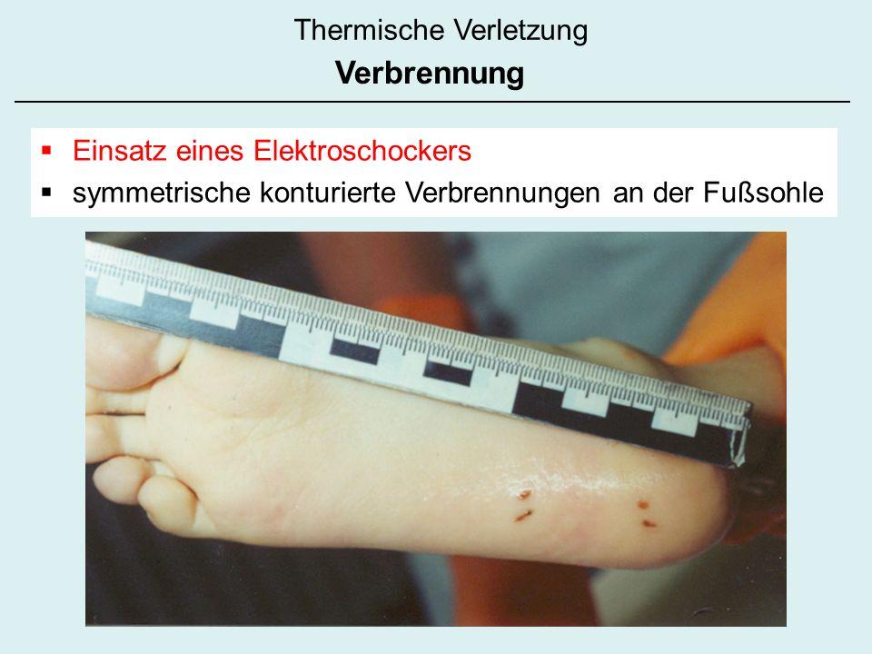Einsatz eines Elektroschockers symmetrische konturierte Verbrennungen an der Fußsohle Thermische Verletzung Verbrennung