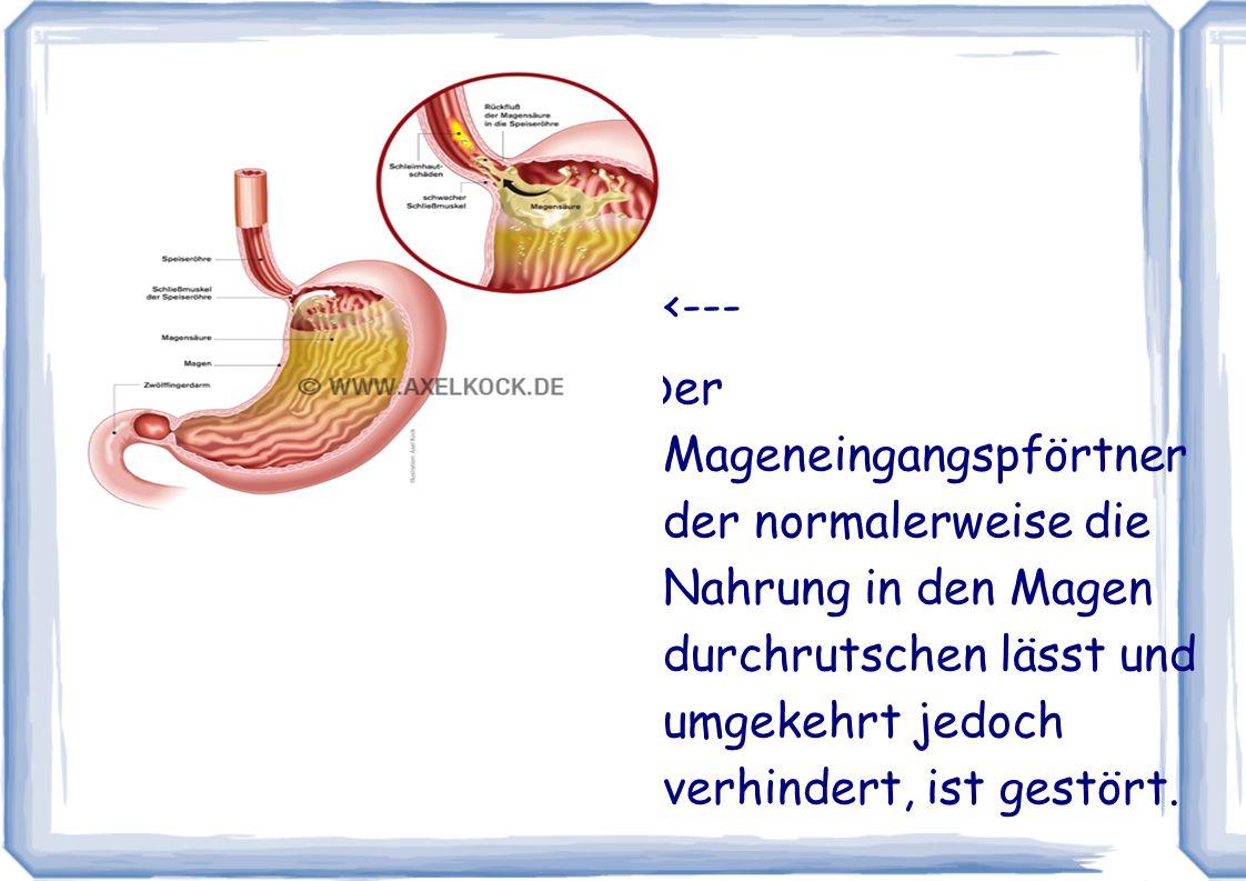 <--- Der Mageneingangspförtner der normalerweise die Nahrung in den Magen durchrutschen lässt und umgekehrt jedoch verhindert, ist gestört.