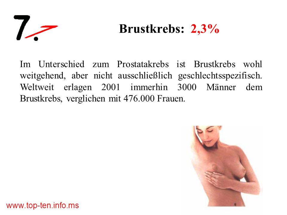 www.top-ten.info.ms Brustkrebs: 2,3% Im Unterschied zum Prostatakrebs ist Brustkrebs wohl weitgehend, aber nicht ausschließlich geschlechtsspezifisch.