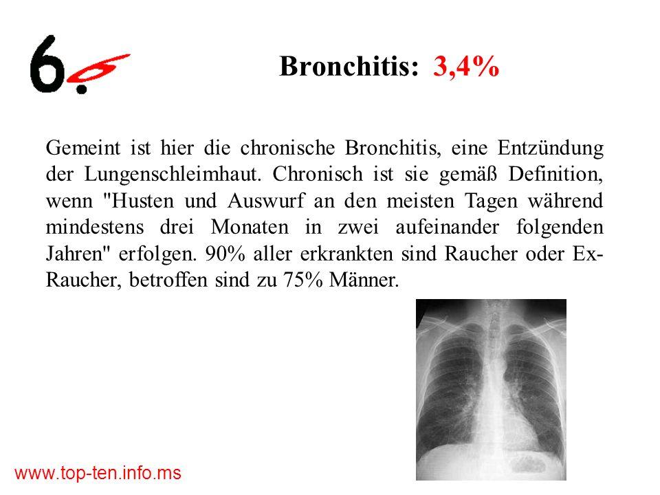 www.top-ten.info.ms Bronchitis: 3,4% Gemeint ist hier die chronische Bronchitis, eine Entzündung der Lungenschleimhaut.