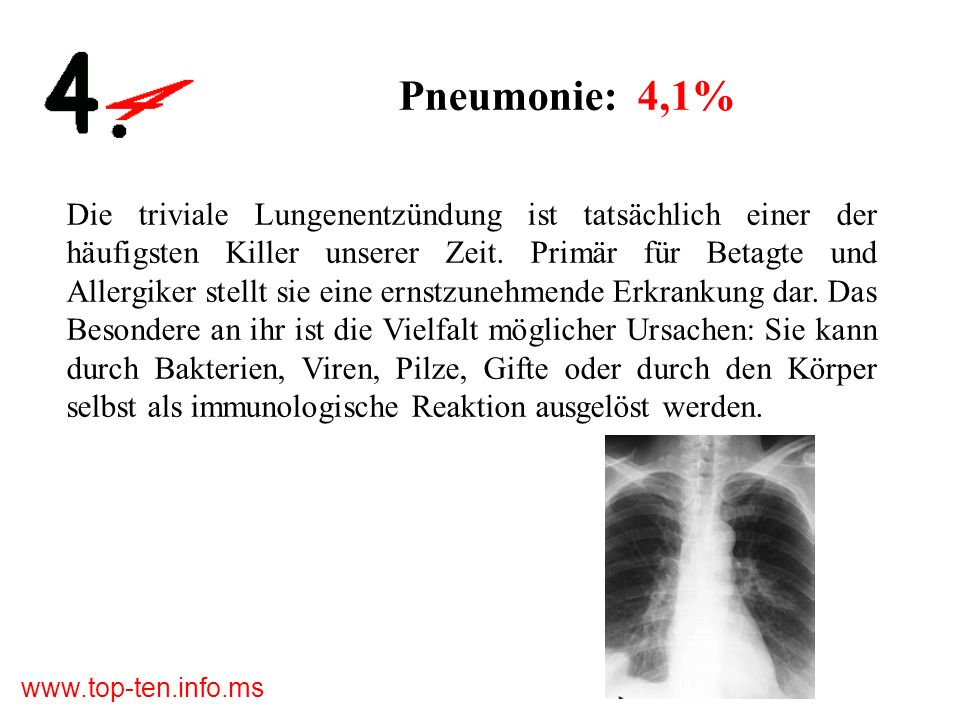 www.top-ten.info.ms Pneumonie: 4,1% Die triviale Lungenentzündung ist tatsächlich einer der häufigsten Killer unserer Zeit.