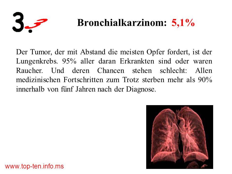 www.top-ten.info.ms Bronchialkarzinom: 5,1% Der Tumor, der mit Abstand die meisten Opfer fordert, ist der Lungenkrebs.