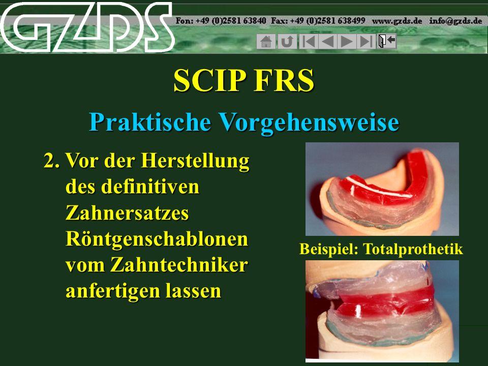 SCIP FRS Praktische Vorgehensweise 2. Vor der Herstellung des definitiven Zahnersatzes Röntgenschablonen vom Zahntechniker anfertigen lassen Beispiel: