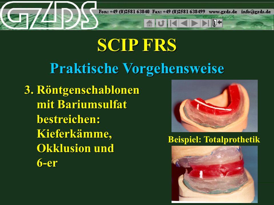 SCIP FRS Praktische Vorgehensweise 3. Röntgenschablonen mit Bariumsulfat bestreichen: Kieferkämme, Okklusion und 6-er Beispiel: Totalprothetik