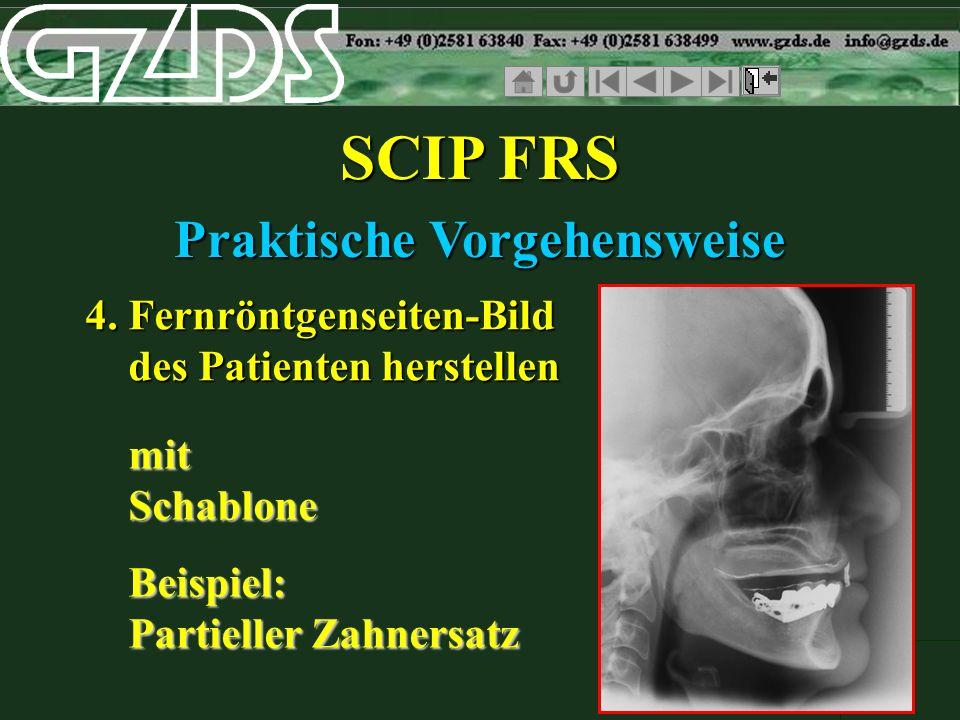 SCIP FRS Praktische Vorgehensweise 4. Fernröntgenseiten-Bild des Patienten herstellen mit Schablone Beispiel: Partieller Zahnersatz mit Schablone Beis