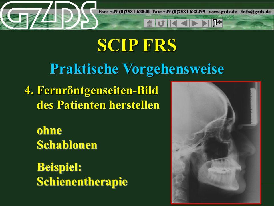 SCIP FRS Praktische Vorgehensweise 4. Fernröntgenseiten-Bild des Patienten herstellen ohne Schablonen Beispiel: Schienentherapie ohne Schablonen Beisp