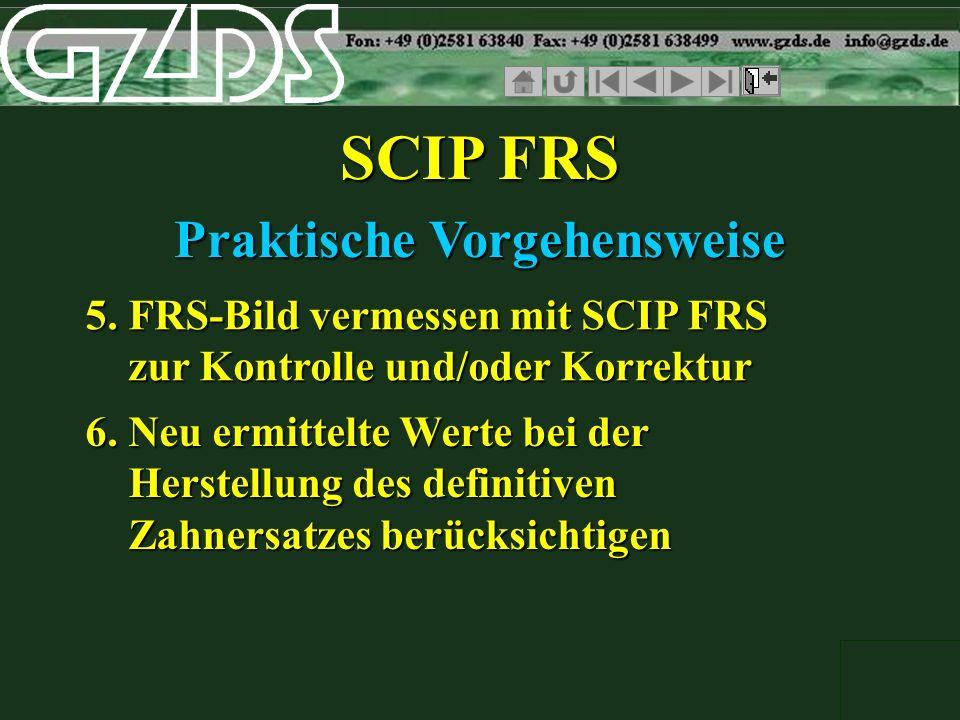 SCIP FRS Praktische Vorgehensweise 5. FRS-Bild vermessen mit SCIP FRS zur Kontrolle und/oder Korrektur 6. Neu ermittelte Werte bei der Herstellung des