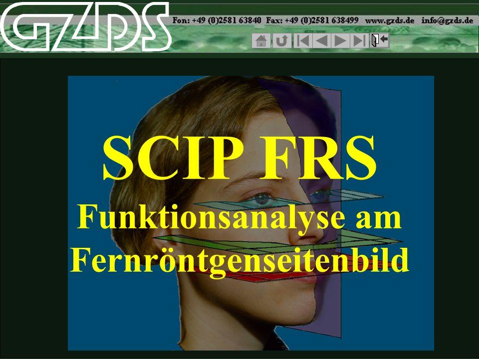 SCIP FRS Vergleich der Röntgenbilder ohne Simulationmit Simulation ansteigende Okklusion Okklusion:Camper parallel