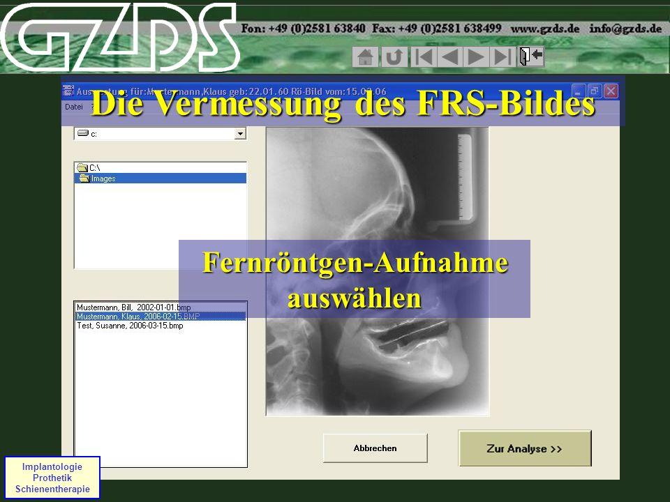 Implantologie Prothetik Schienentherapie Fernröntgen-Aufnahme auswählen Die Vermessung des FRS-Bildes