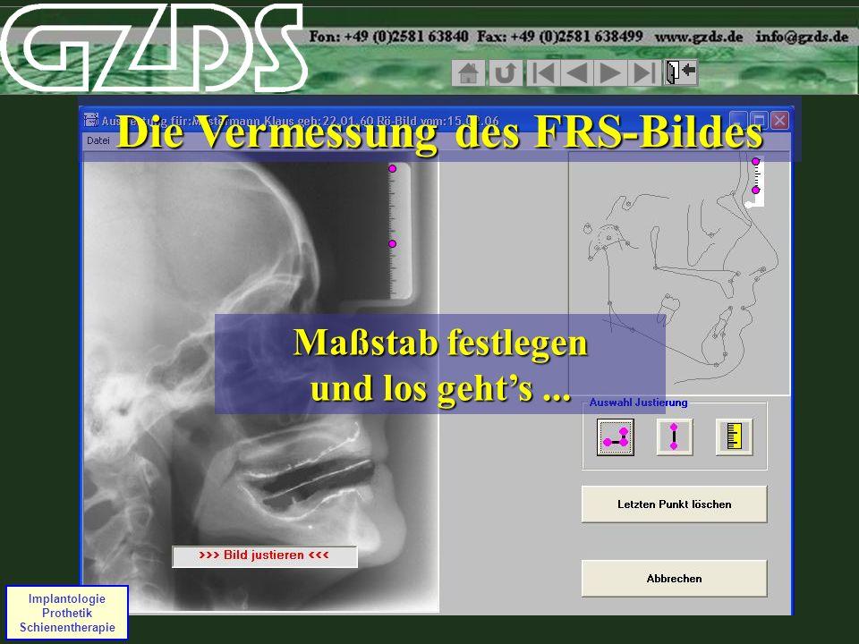 Implantologie Prothetik Schienentherapie Die Vermessung des FRS-Bildes Maßstab festlegen und los gehts...