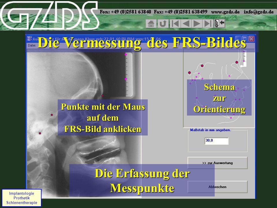 Implantologie Prothetik Schienentherapie Die Vermessung des FRS-Bildes Die Erfassung der Messpunkte Schema zur Orientierung Punkte mit der Maus auf de
