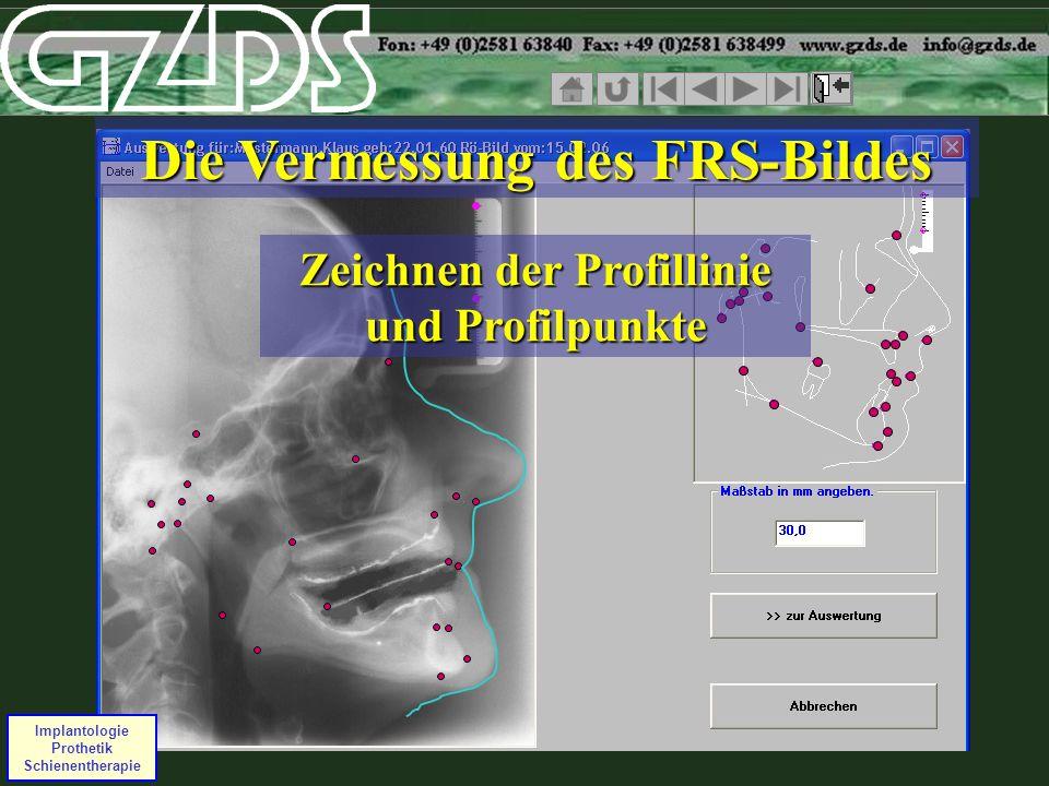 Implantologie Prothetik Schienentherapie Die Vermessung des FRS-Bildes Zeichnen der Profillinie und Profilpunkte