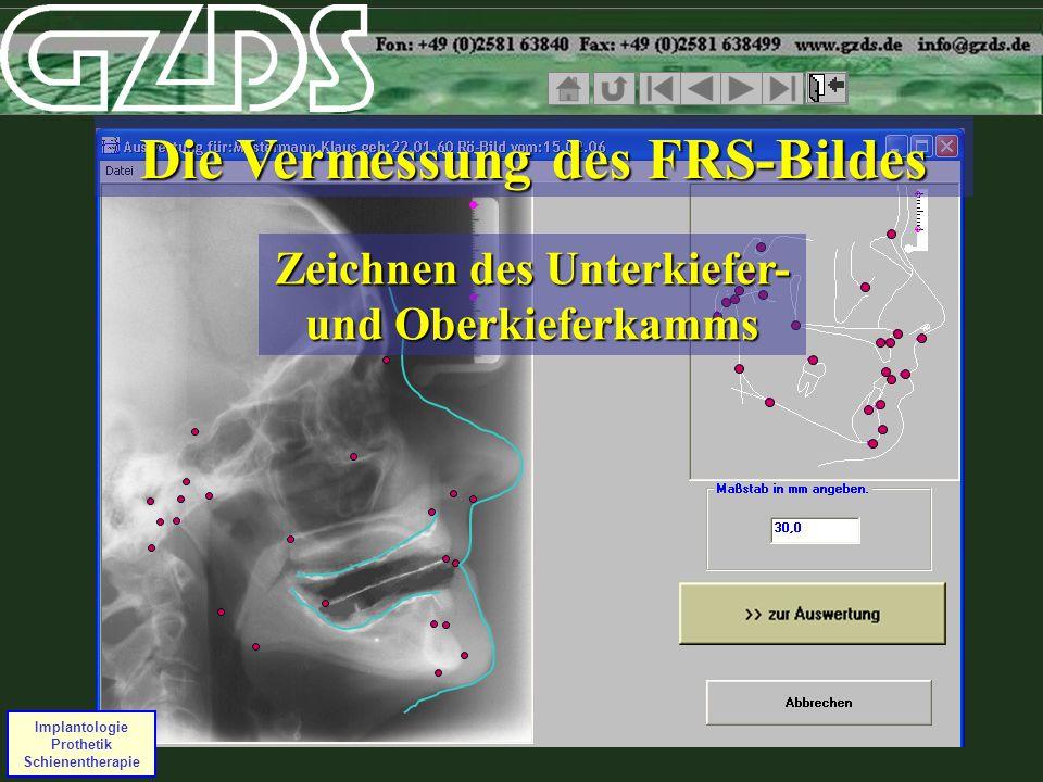 Implantologie Prothetik Schienentherapie Die Vermessung des FRS-Bildes Zeichnen des Unterkiefer- und Oberkieferkamms