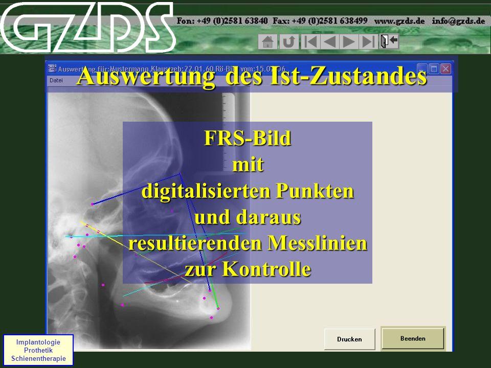 Implantologie Prothetik Schienentherapie FRS-Bild mit digitalisierten Punkten und daraus resultierenden Messlinien zur Kontrolle Auswertung des Ist-Zu