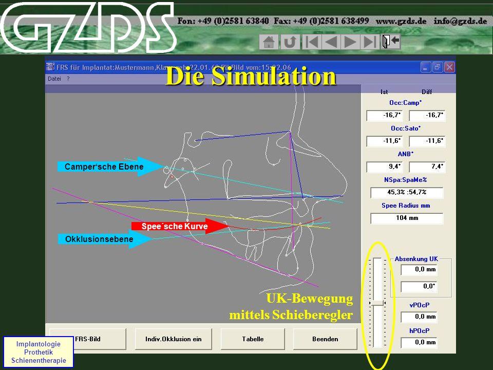Campersche Ebene Okklusionsebene Spee´sche Kurve Implantologie Prothetik Schienentherapie UK-Bewegung mittels Schieberegler Die Simulation