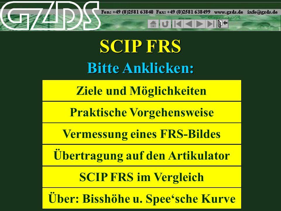 SCIP FRS Bitte Anklicken: Ziele und Möglichkeiten Praktische Vorgehensweise Vermessung eines FRS-Bildes Übertragung auf den Artikulator SCIP FRS im Vergleich Über: Bisshöhe u.