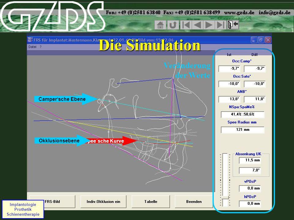 Campersche Ebene Spee´sche Kurve Okklusionsebene Implantologie Prothetik Schienentherapie Veränderung der Werte Die Simulation