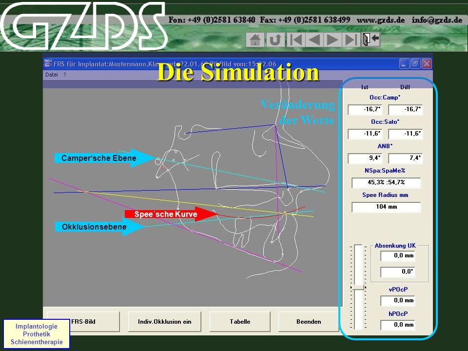Spee´sche Kurve Campersche Ebene Okklusionsebene Implantologie Prothetik Schienentherapie Veränderung der Werte Die Simulation