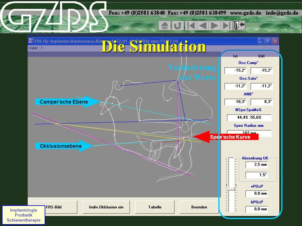 Campersche Ebene Okklusionsebene Speesche Kurve Implantologie Prothetik Schienentherapie Veränderung der Werte Die Simulation