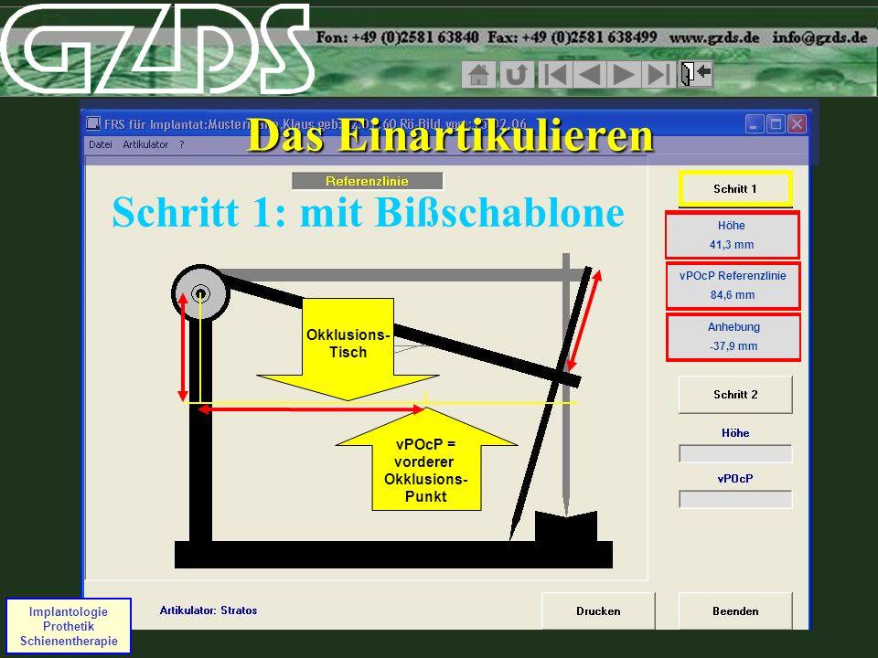 Das Einartikulieren Schritt 1: mit Bißschablone Höhe 41,3 mm Höhe 41,3 mm vPOcP Referenzlinie 84,6 mm vPOcP Referenzlinie 84,6 mm Anhebung -37,9 mm vP