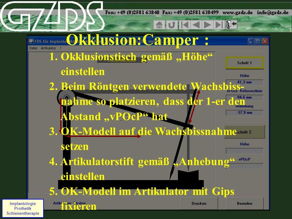 Okklusion:Camper : 1. Okklusionstisch gemäß Höhe einstellen 2. Beim Röntgen verwendete Wachsbiss- nahme so platzieren, dass der 1-er den Abstand vPOcP