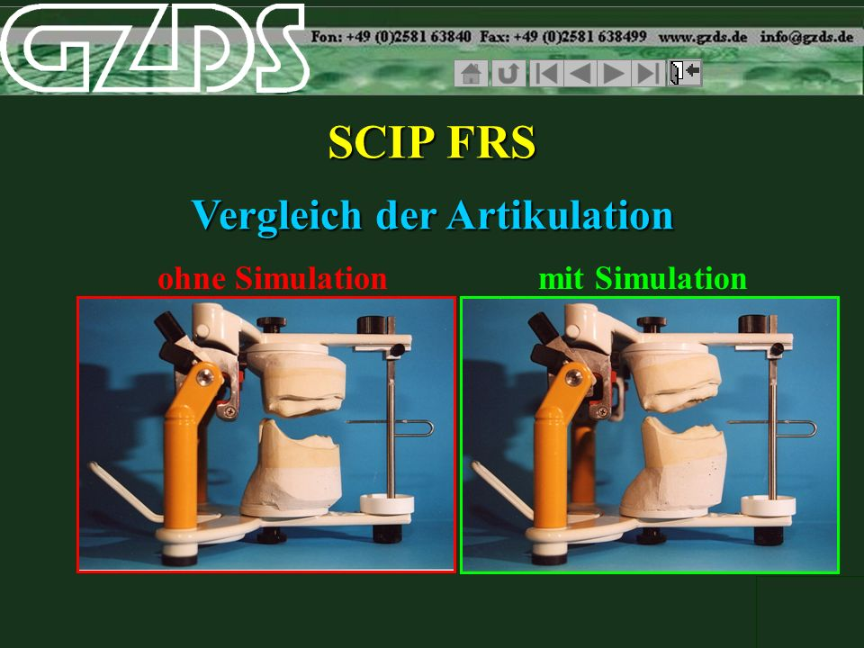 SCIP FRS Vergleich der Artikulation ohne Simulationmit Simulation