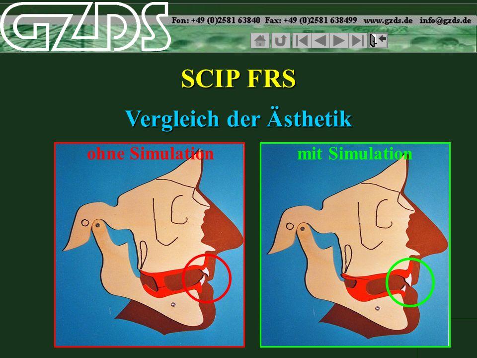 SCIP FRS Vergleich der Ästhetik ohne Simulationmit Simulation