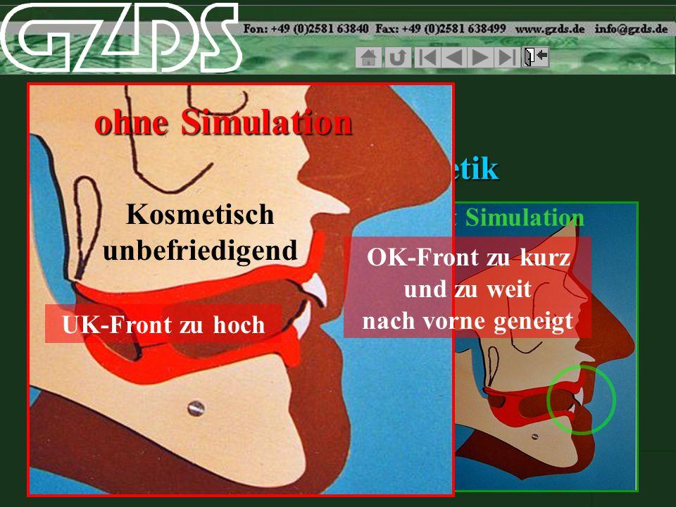 ohne Simulationmit Simulation SCIP FRS Vergleich der Ästhetik ohne Simulation Kosmetisch unbefriedigend OK-Front zu kurz und zu weit nach vorne geneig