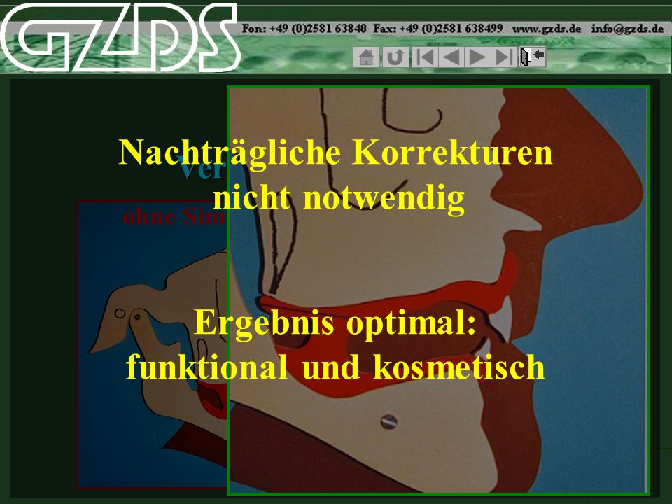 ohne Simulationmit Simulation SCIP FRS Vergleich der Ästhetik Nachträgliche Korrekturen nicht notwendig Ergebnis optimal: funktional und kosmetisch