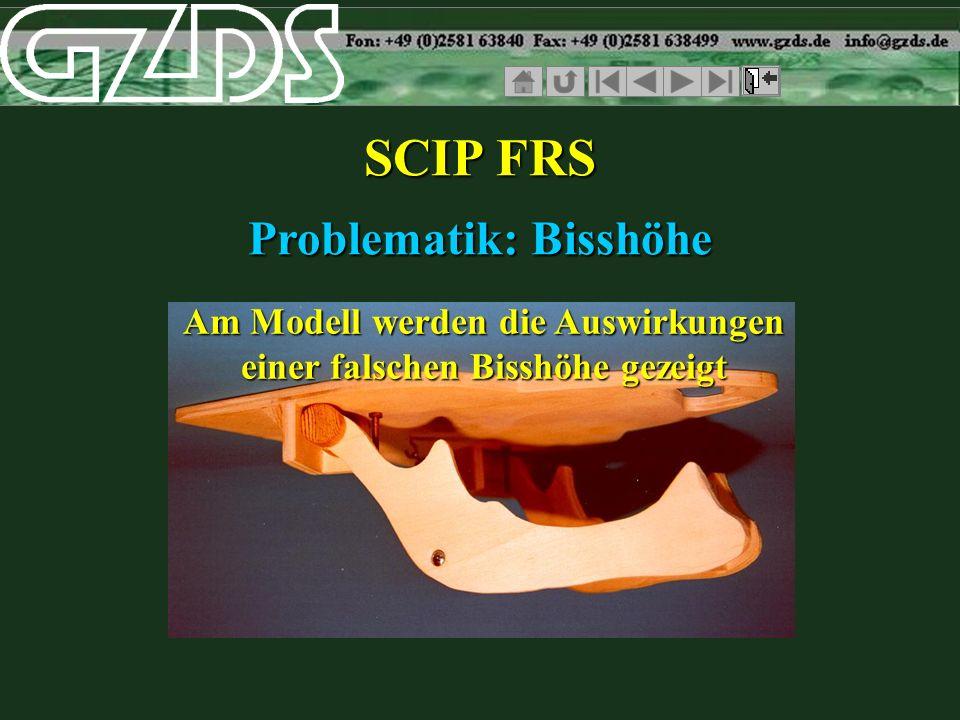 SCIP FRS Problematik: Bisshöhe Am Modell werden die Auswirkungen einer falschen Bisshöhe gezeigt