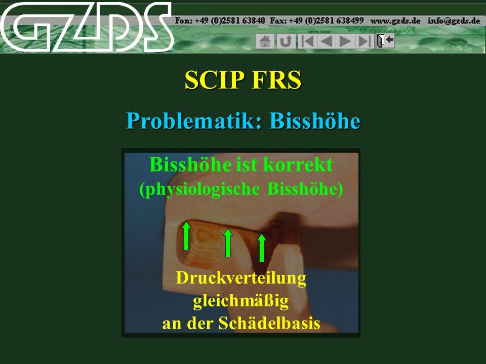 SCIP FRS Problematik: Bisshöhe Bisshöhe ist korrekt (physiologische Bisshöhe) Druckverteilung gleichmäßig an der Schädelbasis