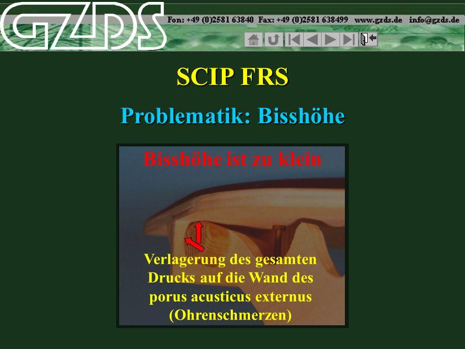 SCIP FRS Problematik: Bisshöhe Bisshöhe ist zu klein Verlagerung des gesamten Drucks auf die Wand des porus acusticus externus (Ohrenschmerzen)
