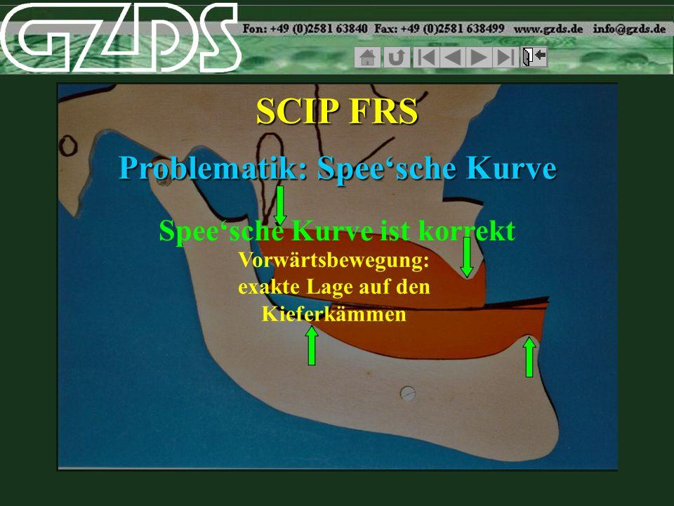 Speesche Kurve ist korrekt SCIP FRS Problematik: Speesche Kurve Vorwärtsbewegung: exakte Lage auf den Kieferkämmen
