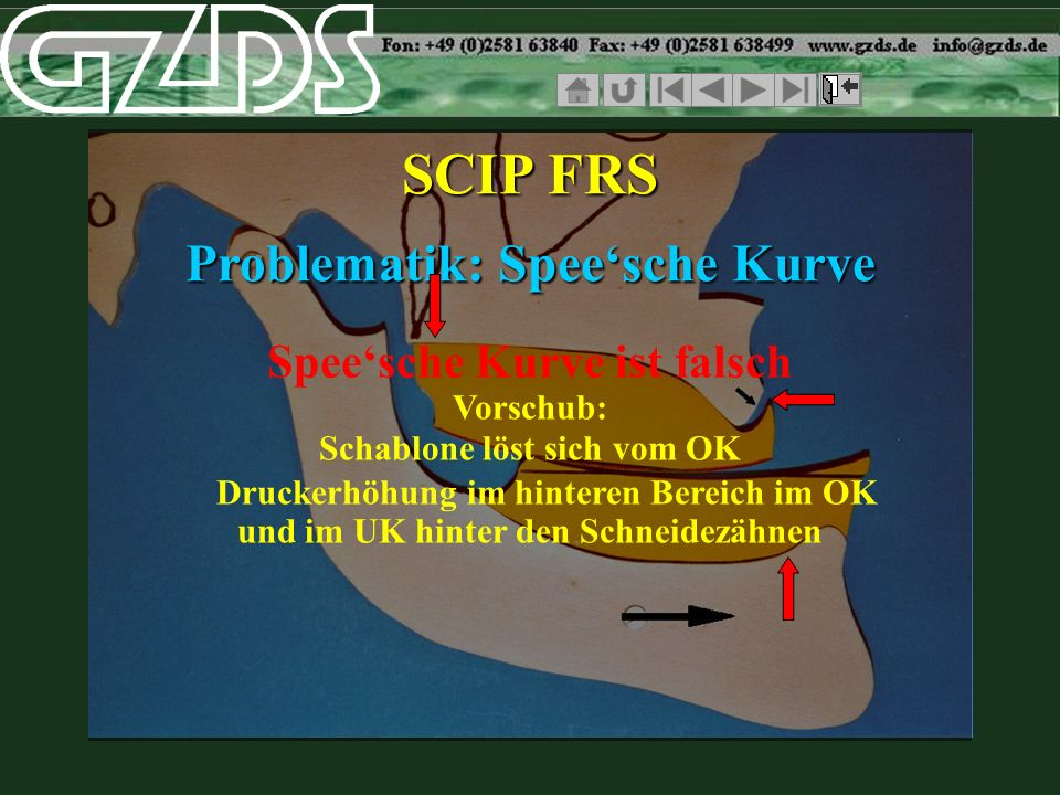 Speesche Kurve ist falsch SCIP FRS Problematik: Speesche Kurve Vorschub: und im UK hinter den Schneidezähnen Schablone löst sich vom OK Druckerhöhung
