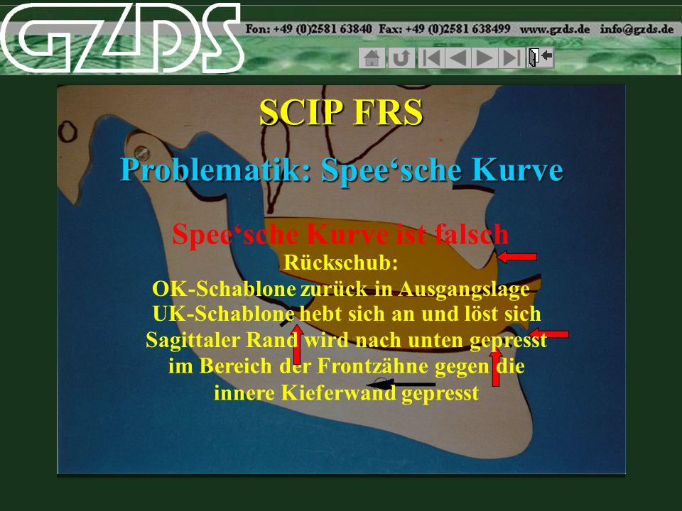 Speesche Kurve ist falsch SCIP FRS Problematik: Speesche Kurve Rückschub: im Bereich der Frontzähne gegen die innere Kieferwand gepresst OK-Schablone