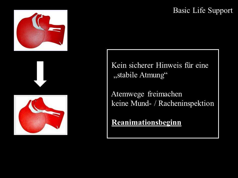 Advanced Life Support Defibrillation Ablauf: 1 x defibrillieren:monophasisch360 J biphasisch150 –360 J keine Kontrolle von Puls, Atmung, Rhythmus sofort 2 Minuten Basisreanimation - 30 : 2 - dann Rhythmusanalyse, ggf.