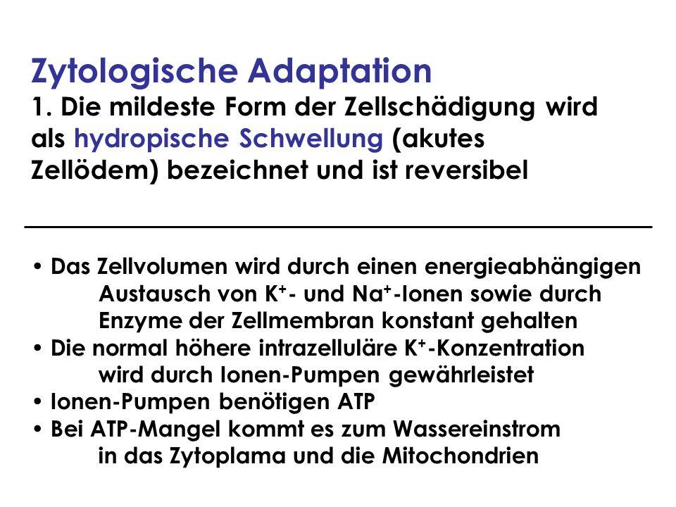 Zytologische Adaptation 1. Die mildeste Form der Zellschädigung wird als hydropische Schwellung (akutes Zellödem) bezeichnet und ist reversibel Das Ze
