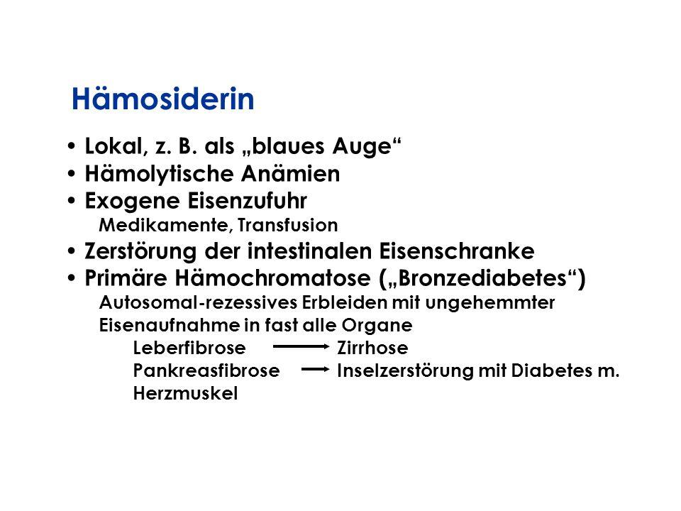 Lokal, z. B. als blaues Auge Hämolytische Anämien Exogene Eisenzufuhr Medikamente, Transfusion Zerstörung der intestinalen Eisenschranke Primäre Hämoc