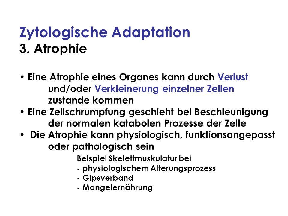Zytologische Adaptation 3. Atrophie Eine Atrophie eines Organes kann durch Verlust und/oder Verkleinerung einzelner Zellen zustande kommen Eine Zellsc