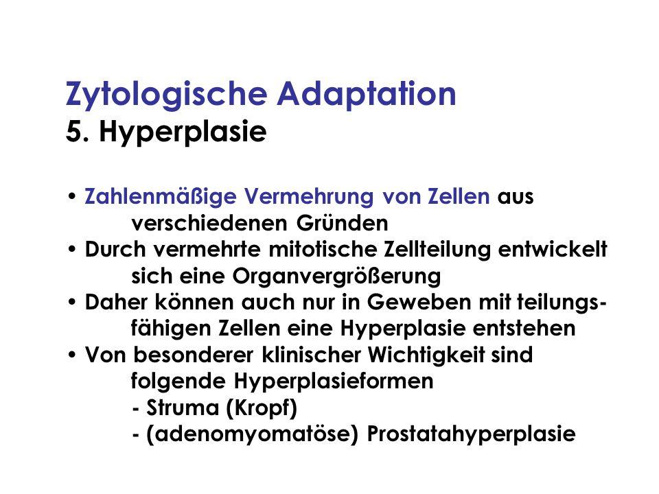Zytologische Adaptation 5. Hyperplasie Zahlenmäßige Vermehrung von Zellen aus verschiedenen Gründen Durch vermehrte mitotische Zellteilung entwickelt