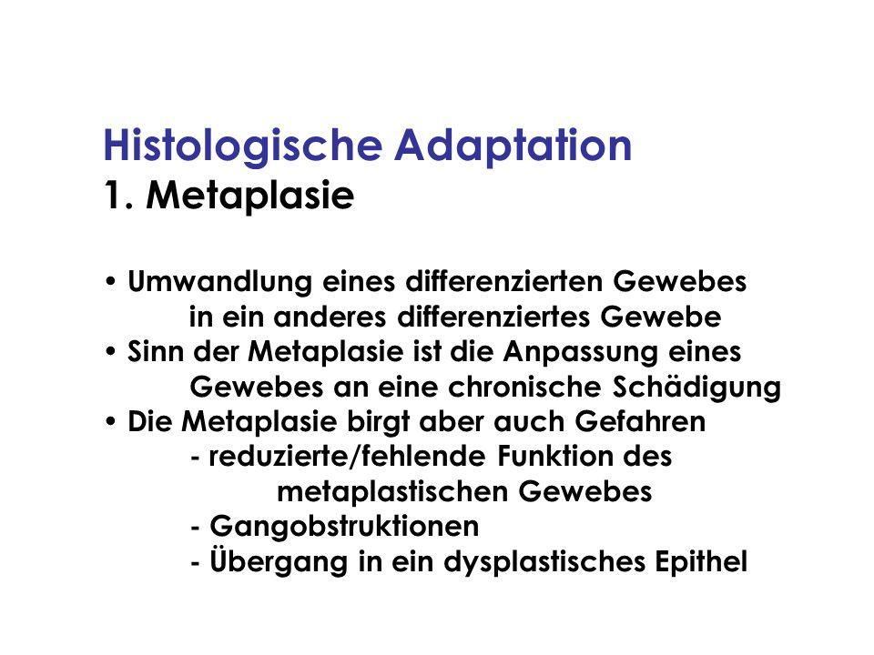 Histologische Adaptation 1. Metaplasie Umwandlung eines differenzierten Gewebes in ein anderes differenziertes Gewebe Sinn der Metaplasie ist die Anpa