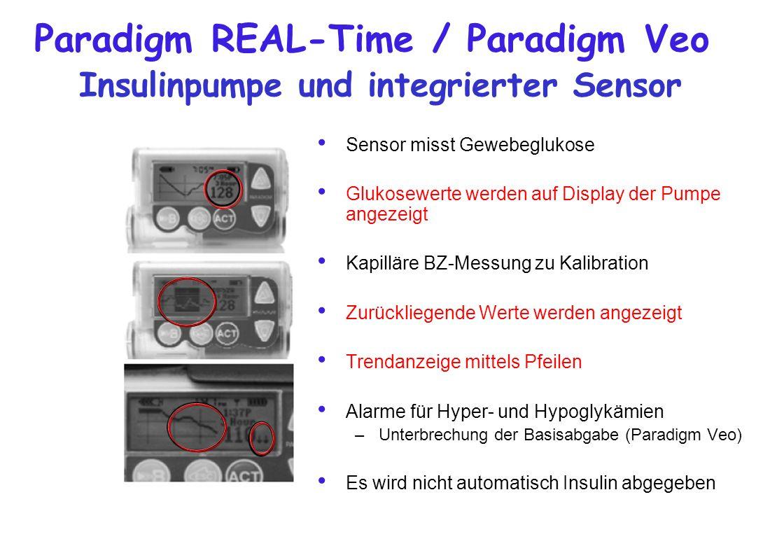 Paradigm REAL-Time / Paradigm Veo Insulinpumpe und integrierter Sensor Sensor misst Gewebeglukose Glukosewerte werden auf Display der Pumpe angezeigt