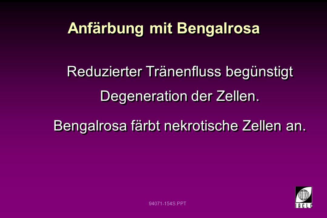 94071-154S.PPT Anfärbung mit Bengalrosa Reduzierter Tränenfluss begünstigt Degeneration der Zellen. Bengalrosa färbt nekrotische Zellen an. Reduzierte