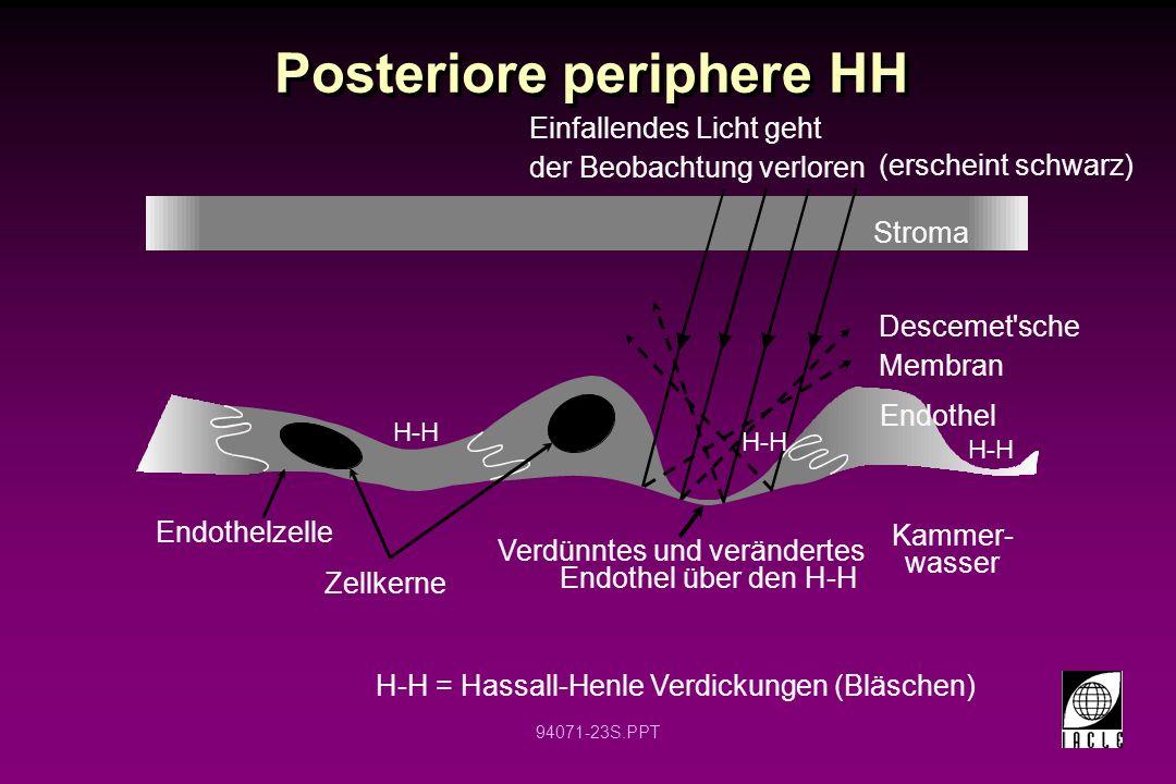 94071-23S.PPT Posteriore periphere HH Stroma Endothelzelle Zellkerne Verdünntes und verändertes Endothel über den H-H Kammer- wasser H-H = Hassall-Hen